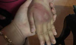 Kẻ nghiện đánh con gái 8 tuổi bầm dập
