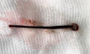Con đỉa dài 4 cm nằm trong mũi nữ sinh