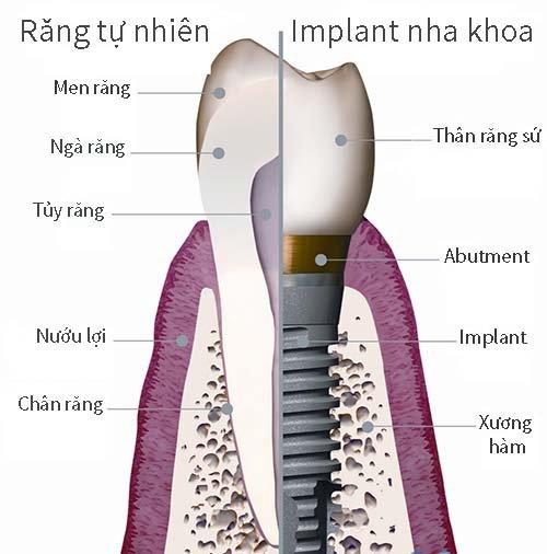 Hình ảnh so sánh (Răng thật/răng implant).