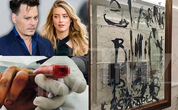 Amber công bố ảnh ngón tay của Johnny Depp bị cắt lìa vào tháng 3/2015 - một tháng sau khi họ kết hôn. Johnny cũng dùng ngón tay tứa máu viết lên kính tên Billy Bob Thornton.