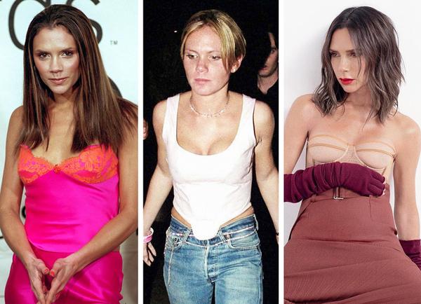 12 sao nữ Hollywood không giấu giếm chuyện đã đụng dao kéo - 2