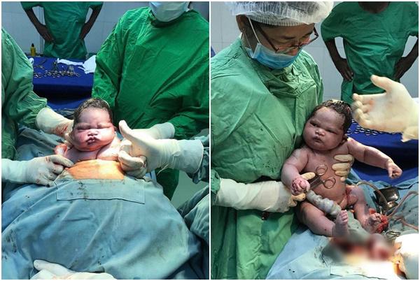 Em bé với vẻ mặt hầm hố khi vừa chào đời.