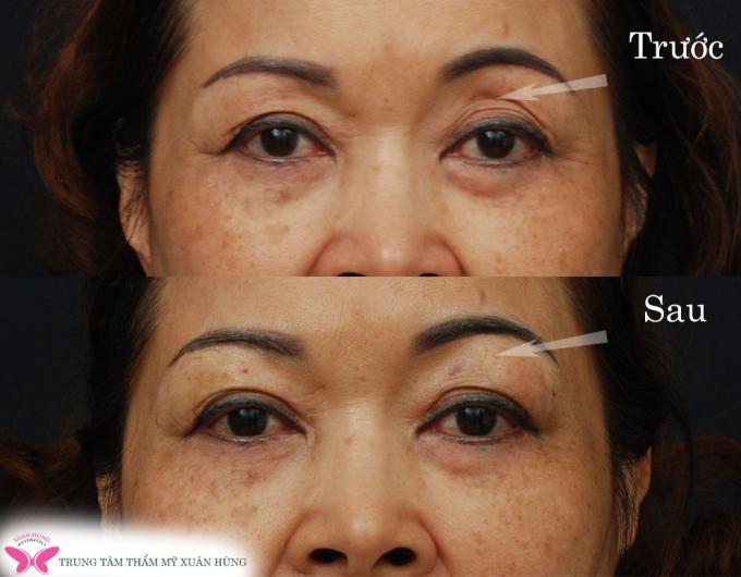 Bác sĩ chia sẻ những biến chứng khi phẫu thuật thẩm mỹ mắt - 2