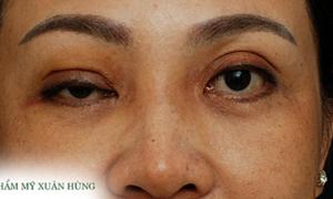Bác sĩ chia sẻ những biến chứng khi phẫu thuật thẩm mỹ mắt