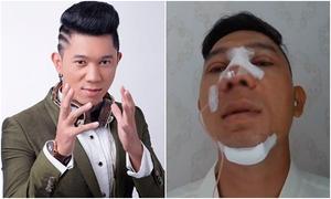 Lương Bằng Quang phẫu thuật thẩm mỹ toàn bộ gương mặt