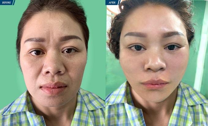 Chị Lương Thị N. trước và sau khi sử dụng phương pháp trẻ hóa căng da mặt Mesh lift.