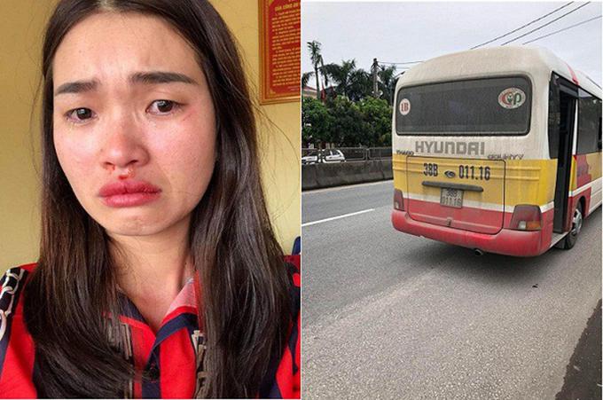 Nạn nhân Hoài và chiếc xe buýt do vợ chồng ông Lĩnh làm chủ. Ảnh: H.L