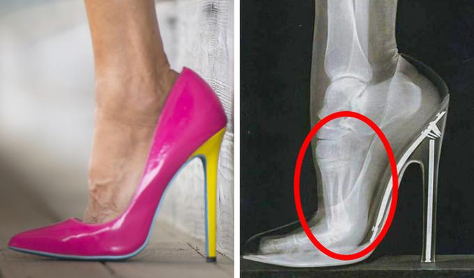 Giày cao gótNhiều người gọi giày cao gót là phát minh vĩ đại dành cho phụ nữ bởi chúng giúp đôi chân trông dài hơn, vóc dáng hấp dẫn hơn, nhưng tác hại chúng gây ra cũng lớn hơn bạn nghĩ. Thường xuyên sử dụng loại giày này có thể dẫn đến bong gân, móng chân mọc ngược, tổn thương dây thần kinh và đau lưng dưới.Để thoát khỏi những vấn đề này, các nàng nên chọn giày cao dưới 9 cm và chuẩn bị sẵn một đôi dép lê ở văn phòng để thay khi bạn không ra ngoài.