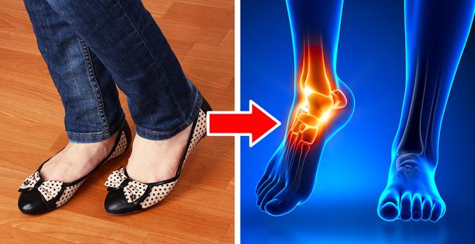 Giày bệt thời trangĐiều này có thể khiến nhiều người ngạc nhiên, nhưng giày bệt cũng có khả năng gây hại cho chân bạn. Đó là vì chúng không có sự hỗ trợ hình vòng cung gây áp lực lên gan bàn chân. Kết quả là bạn sẽ bị đau ở đầu gối và lưng.