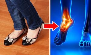 6 kiểu giày dép có thể gây hại cho sức khỏe