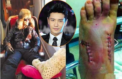 Trong lúc quay cảnh võ thuật của phim Bạch phát ma nữ truyện chi minh nguyệt thiên quốc, Huỳnh Hiểu Minh bị tuột dây cáp bảo hộ. Cú rơi tự do từ độ cao 3m khiến tài tử bị gãy hai ngón chân bên bàn chân trái, bị thương ở đầu đối phải và tay trái.