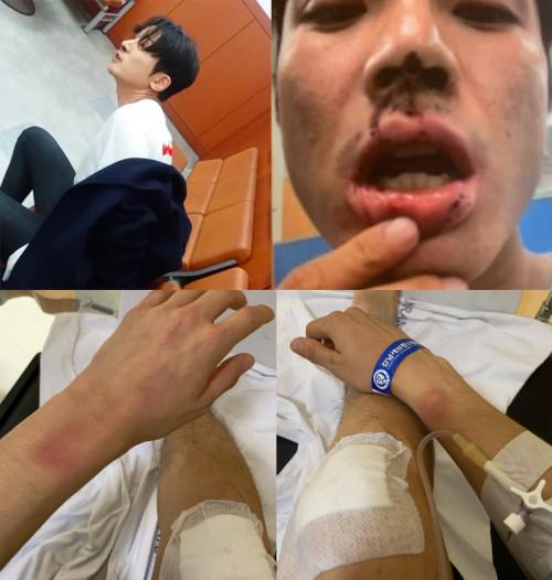 Vết thương của nạn nhân Kim Sang Kyo.