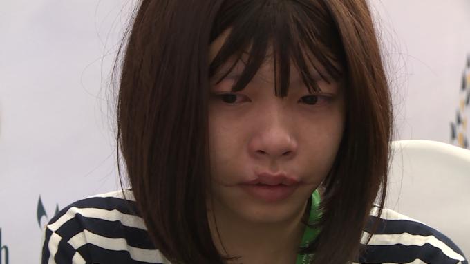 Gặp trường cũng kém may mắn về ngoại hình và hoàn cảnh sống. Đó là câu chuyện của Võ Thị Xuân Quỳnh 21 tuổi vốn sở hữu gương mặt xinh xắn nhưng không may gặp tai nạn bất ngờ. Xuân Quỳnh vốn là cô sinh viên năm 2 từ quê lên thành phố học tại trường ĐH Giao Thông Vận Tải TP HCM nhưng không may trong lúc đi thi xong rồi về phòng trọ và xảy ra tai nạn thang máy của phòng trọ bị hư và rơi bất ngờ và em bị kẹt đầu vào thang do va đập quá mạnh nên đã bị thương ở phần miệng và gãy và mẻ nhiều răng và bây giờ để lại sẹo ở miệng và môi không đều. Gương mặt bị biến dạng do thang máy tự chế của ông chủ phòng trọ rơi vào đầu khiến mặt Võ Thị Thị Xuân Quỳnh biến dạng, phải đội tóc giả. Tai nạn kinh hoàng này đã ám ảnh cô gái trẻ mỗi lần nhìn khuôn mặt mình: tự ti về khuôn mặt mình đi học Quỳnh luôn đeo khẩu trang ngay cả trong lớp học, bị vậy em dần dần xa lánh bạn bè, tan học em lại quay về phòng trọ của mình và rất buồn khi không tham gia các hoạt động các buổi liên hoan của lớp.