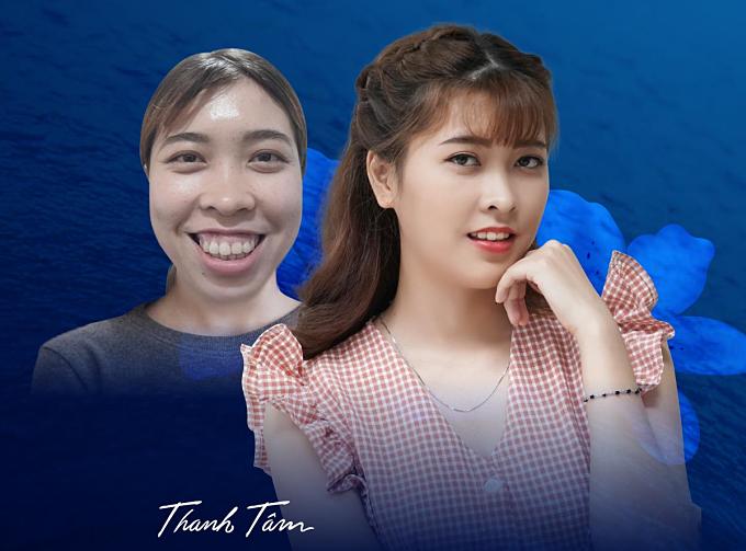 Thanh Tâm sinh ra tại Bình Thuận, theo đuổi nghiệp giáo viên. Trước đây cô không dám ngẩng đầu nhìn ai vì hàm hô, gương mặt kém ưa nhìn. Sau thẩm mỹ, Thanh Tâm được khen xinh đẹp, duyên dáng hơn.