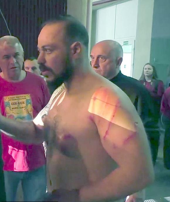 Vết thương trên cơ thể Hamada sau khi bị sư tử tấn công ở rạp xiếc Ukraine. Ảnh: East2west.