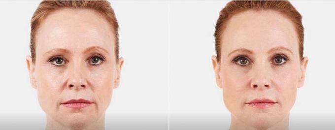 5 dấu hiệu cho thấy làn da bị tổn thương cần chăm sóc - 1