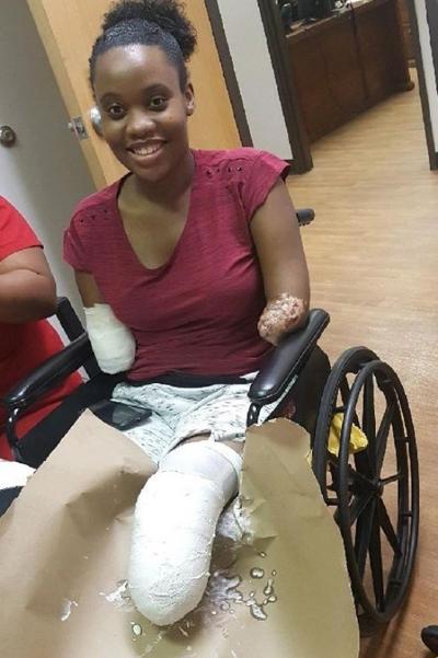 Kayleigh Ferguson-Walker cười vui vẻ dù tay chân đều bị cắt cụt hồi năm 2017. Ảnh: GoFundMe.
