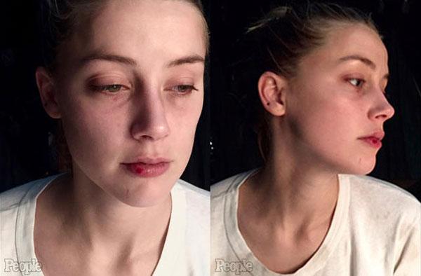 Ảnh chụp Amber Heard bị thương ở mắt và môi vào tháng 12/2015.