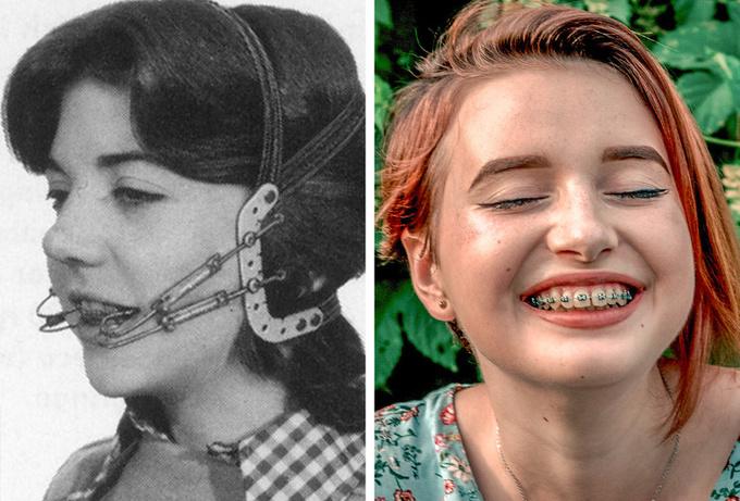Công cuộc làm đẹp của phụ nữ đã thay đổi ra sao sau 100 năm