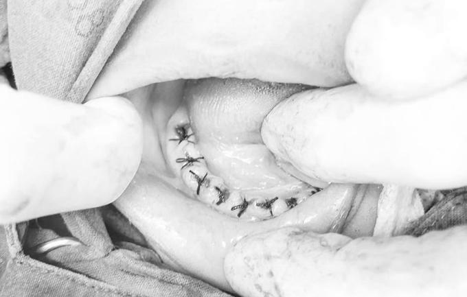 Bác sĩ dùng chỉ khâu phần lợi rách sau khi nhổ răng.