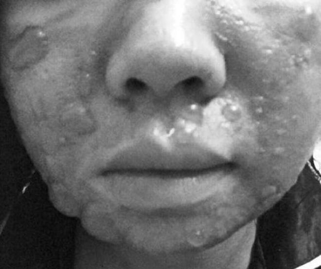 Cô gái bị bỏng mặt do tự lột da tại nhà.