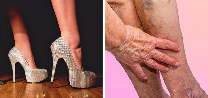 6. Giày cao gótNhiều người gọi giày cao gót là phát minh vĩ đại dành cho phụ nữ bởi chúng giúp đôi chân trông dài hơn, vóc dáng hấp dẫn hơn, nhưng tác hại chúng gây ra cũng lớn hơn bạn nghĩ. Liên tục sử dụng loại giày này có thể gây ra bong gân, móng chân mọc ngược, tổn thương dây thần kinh và đau lưng dưới.Để thoát khỏi những vấn đề này, các nàng nên chọn giày cao dưới 9 cm và chuẩn bị sẵn một đôi dép lê ở văn phòng.