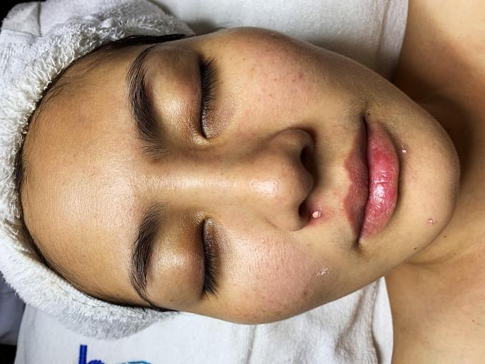 Ngọc Lan tìm đến Belas khi làn da bị xuống cấp nghiêm trọng: mụn, thâm, tàn nhang khắp mặt.