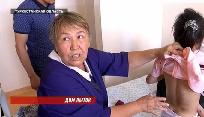 Bà của các bé gái chỉ những vết thương trên cơ thể cháu cho phóng viên địa phương. Ảnh: KTK.