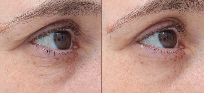 Hình ảnh trước và sau trị liệu Tempsure.