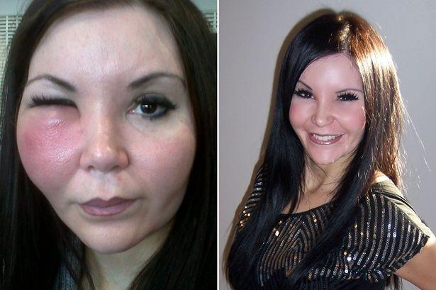 Jo Sandford, 37 tuổi, đến từ London, Anh là trường hợp biến dạng vì tiêm chất làm đầy.
