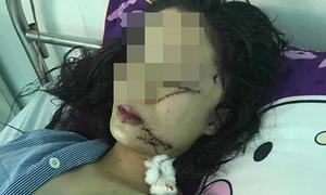 Thiếu nữ bị rạch 7 nhát vào mặt do mâu thuẫn lúc dọn phòng