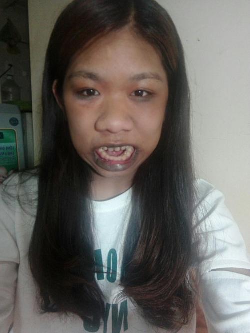 Cô gái bị gọi là người khỉ, 22 năm luôn há miệng và nhiều bệnh lạ