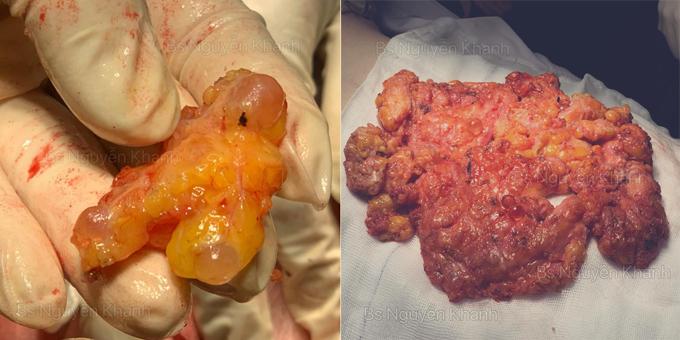 Silicon vón cục cùng mô mỡ, mô ngực được bác sĩ Khanh loại bỏ ra khỏi cơ thể bệnh nhân. Ảnh: Nguyễn Khanh