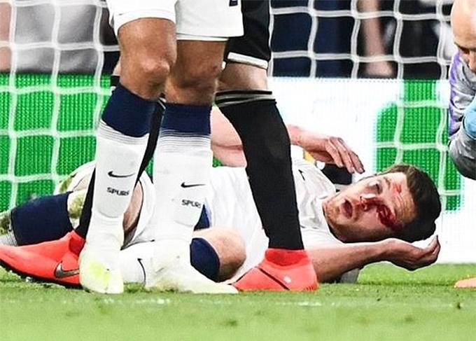 Trung vệ của Tottenham nằm sân, mặt bê bết máu.