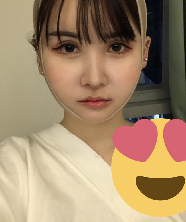 Năm 2018, Ikiri trải qua một ca đại phẫu tại Hàn Quốc.