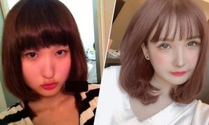 Bị bố đẻ chê xấu, cô gái Nhật chi tiền tỷ phẫu thuật thẩm mỹ