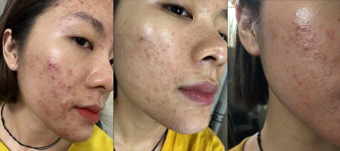 Tình trạng mụn chi chít quanh mặt làm ảnh hưởng không nhỏ đến cuộc sống của Thanh Hiền.