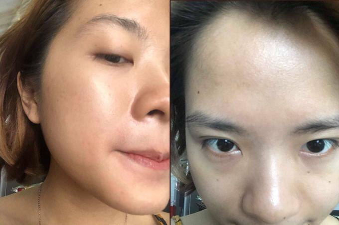 Sau khoảng 5 tháng kiên trì với liệu trình nặn mụn và peel da hàng tháng kết hợp với uống và bôi thuốc đặc trị đã giúp cô gái trẻ cải thiện làn da.