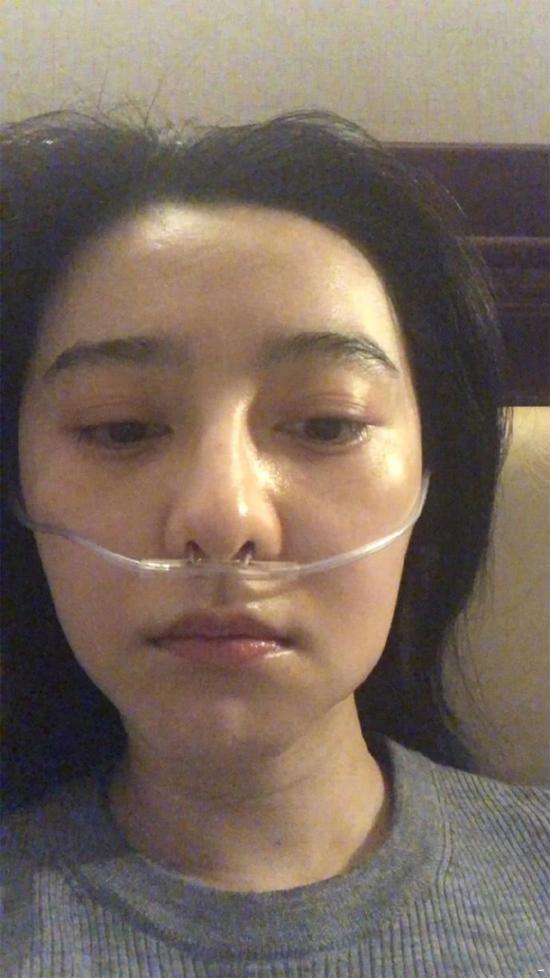 Hình ảnh Băng Băng được hỗ trợ thở bình oxy khi đi từ thiện ở Tây Tạng khiến cô bị chỉ trích: Đừng làm màu nữa, hãy rời khỏi showbiz ngay đi. Trong khi đó, nhiều người giải thích rằng ở vùng nơi Băng Băng tới làm từ thiện có độ cao 4.500m so với mực nước biển, không khí loãng nên dùng bình oxy là bình thường.