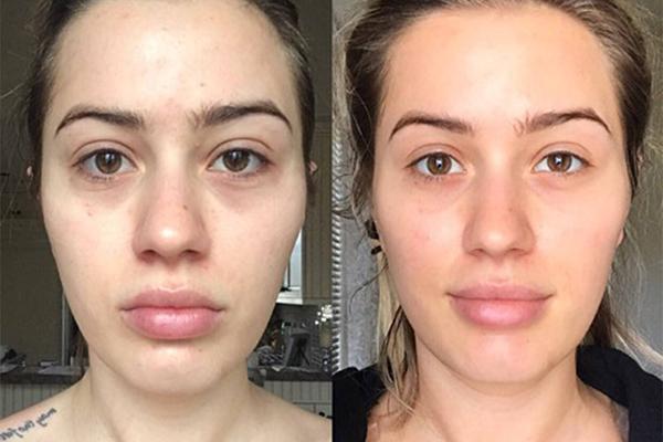 Làn da của Karissa cải thiện đáng kể sau khi phẫu thuật tháo túi ngực.