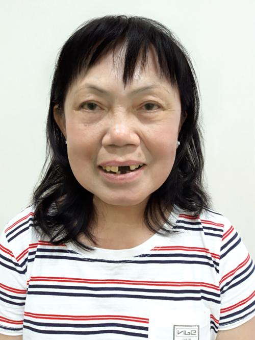 Do không chăm sóc răng miệng kỹ lưỡng, hàm răng của cô Hoa gặp nhiều bệnh lý nghiêm trọng, khiến cô mất tự tin trong cuộc sống.