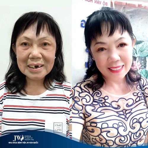 Sau can thiệp và cấy ghép implant tại JW, cô Hoa có hàm răng đều, đẹp.