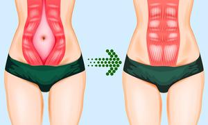 6 động tác siết chặt cơ bụng, giúp mẹ sau sinh nhanh lấy lại vóc dáng