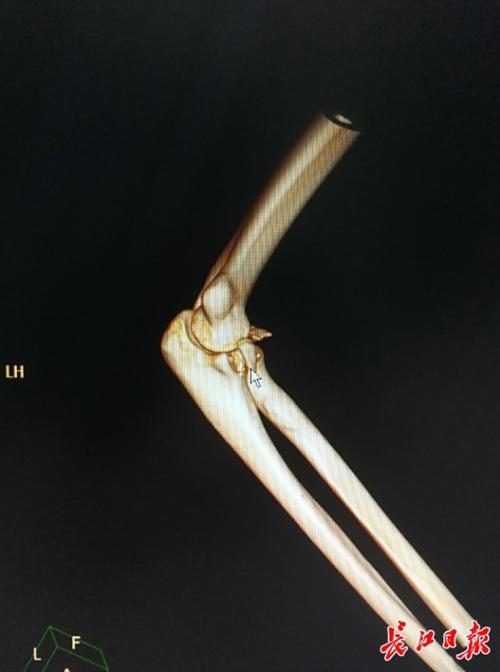 Phần khuỷu tay của Li Nan vừa bị trật khớp vừa bị gãy sau hành động lãng mạn bế người yêu. Ảnh: EBC.