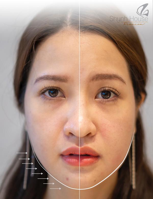 Khách hàngnâng cơ mặt bên trái, căng bóng trẻ hóa bằng công nghệ Thermage tại Shynh House Premium.