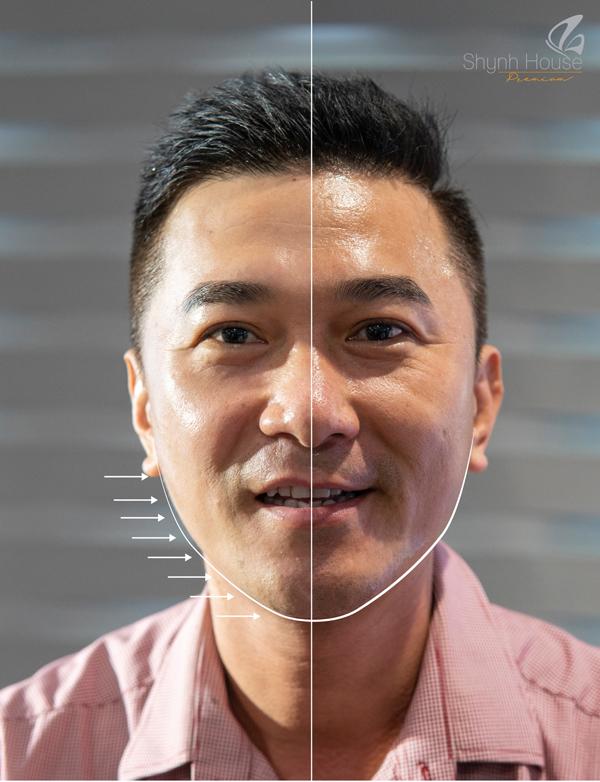 Khách nam nâng cơ mặt bên trái giúp trẻ hóa da bằng Công nghệ Thermage tại Shynh House Premium