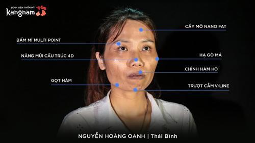 Chị trải qua 7 phẫu thuật khắp khuôn mặt.