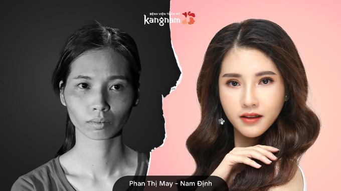 Phan Thị May trước và sau phẫu thuật.