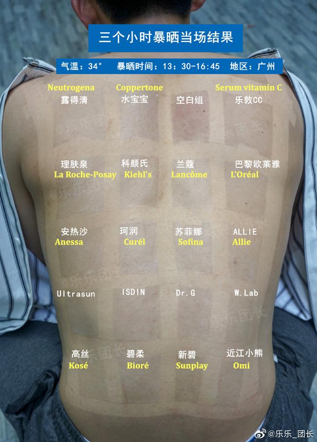 Ngoại trừ vùng da dán băng dính đen, các phần còn lại đều thay đổi sắc tố.