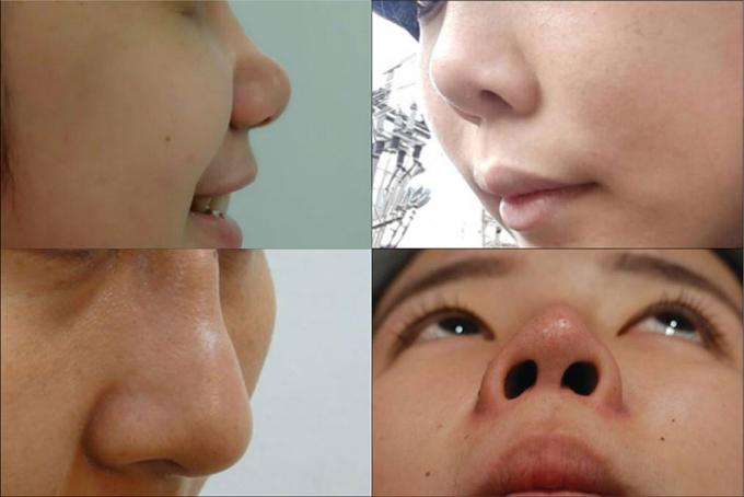 Nâng mũi cấu trúc phù hợp với nhiều trường hợp như không có sống mũi, mũi thấp tẹt, mũi hếch, mũi to thô, mũi gãy và các trường hợp chỉnh sửa mũi sau nâng mũi hỏng.
